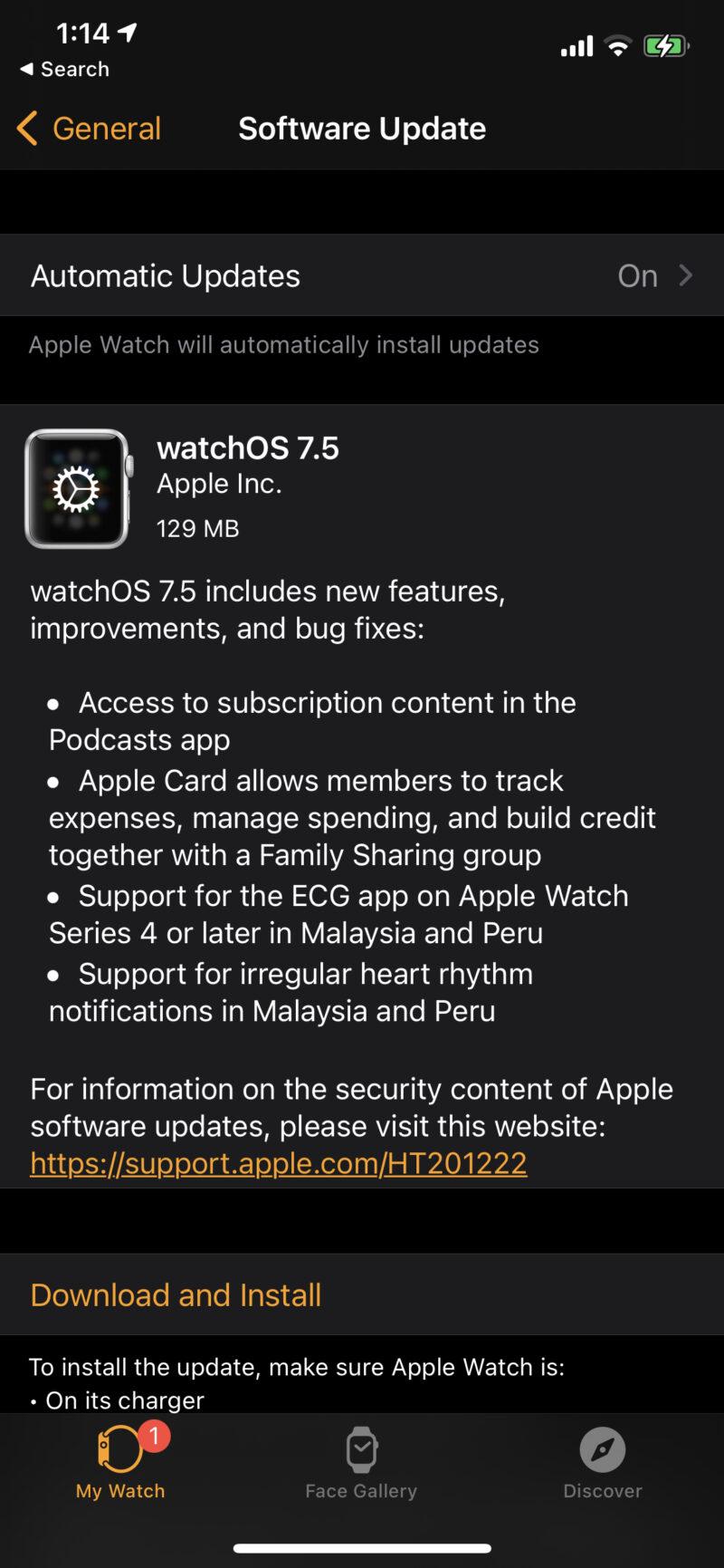Apple Watch ECG Malaysia